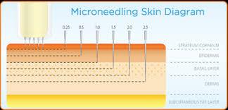 Derma pen micro needling